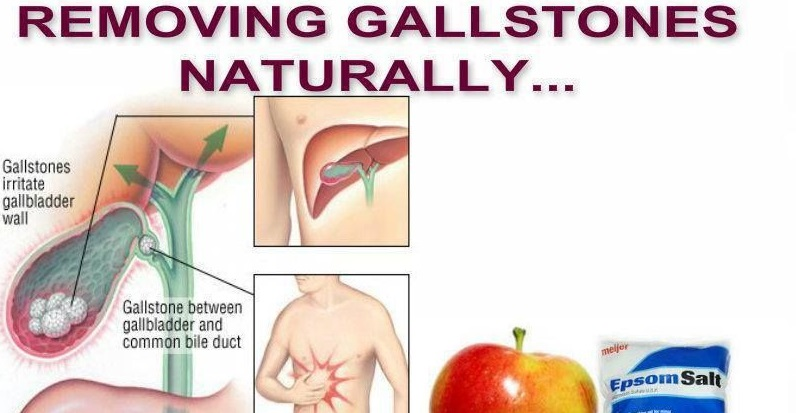 Cleanse your gallbladder naturally-Cleansing and removing gallstones